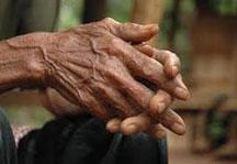 blacks arthritis copy Black arthritis patients get less powerful drugs