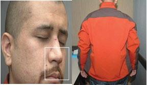 Zimmerman If Trayvon Martin was pounding Zimmerman MMA Style on the dirt, why was Zimmerman's jacket so clean?