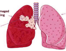 CT scans detect early lung cancer in middle-aged smokers with HIV
