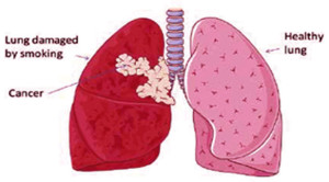 ct-scan-detects-lung-cancer