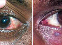 These eye conditions can be the first signs of an HIV Infection